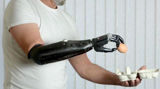 protesis Desarrollan prótesis robótica muy real